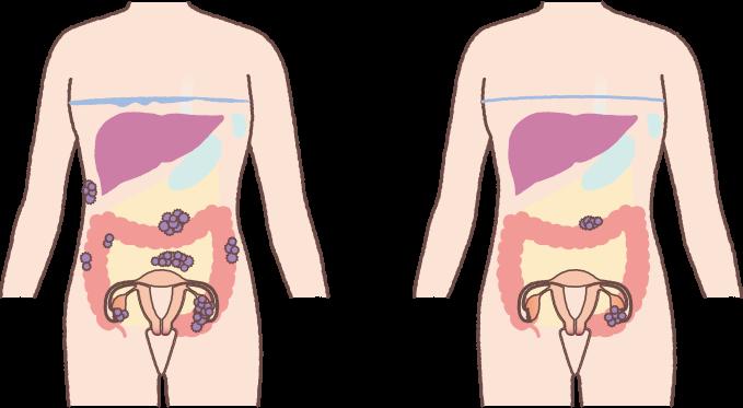 原因 卵巣 の 腫れ 卵巣が腫れる原因、ストレスや冷えとの関係、腫れを抑える対策方法