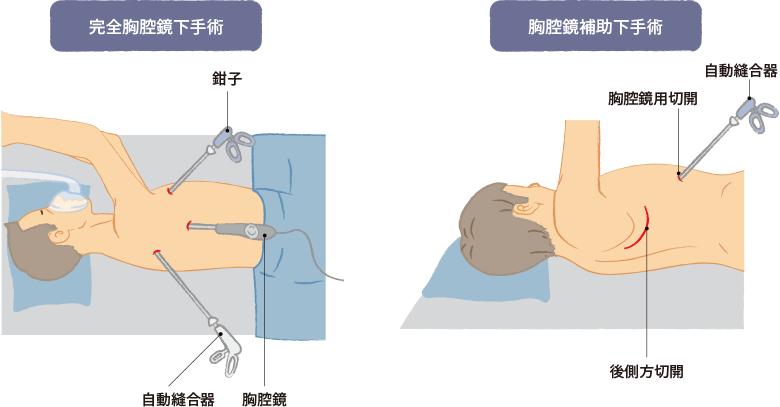 肺がんの手術(外科治療)の特徴と術後の副作用・合併症|おしえて ...